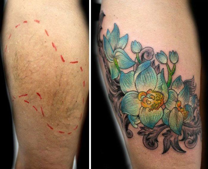 tatuaje sobre cicatrices 1