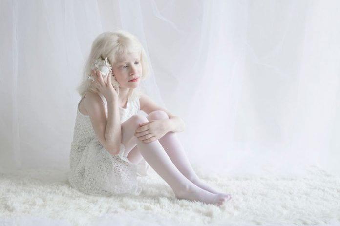 artista-albinismo1