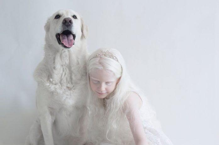artista-albinismo10