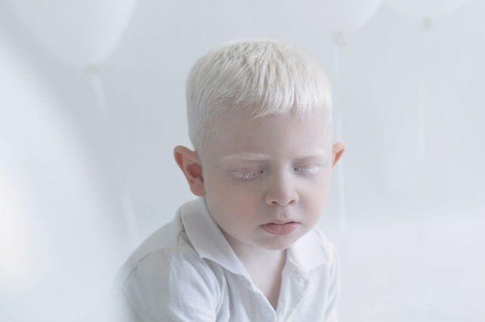 artista-albinismo11