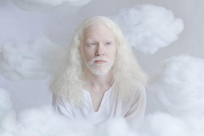 artista-albinismo4