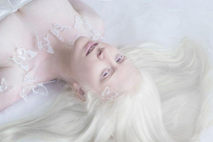 artista-albinismo8