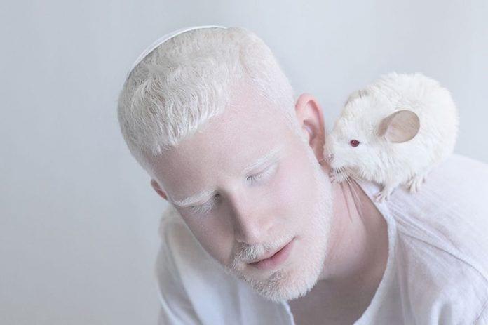 artista-albinismo9