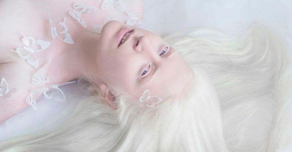 fotos bonitas albinos