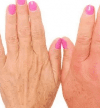 dedos himchados